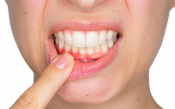 Gingivitis tratamiento clínicas dentales en Torrevieja